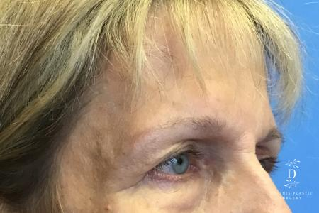 Eyelid Surgery: Patient 4 - Before Image 2
