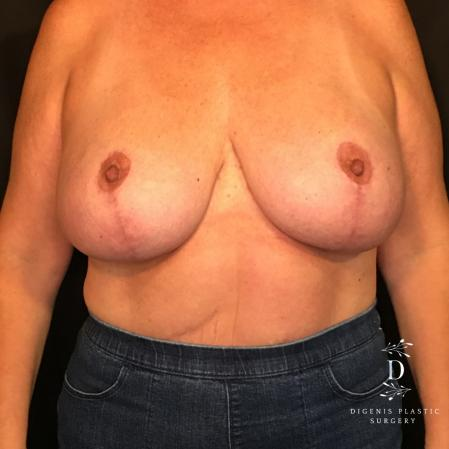Breast Lift With Implants: Patient 4 - After Image 1
