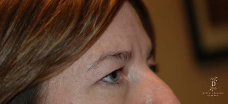 Eyelid Surgery: Patient 2 - Before Image 2