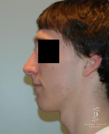 Rhinoplasty: Patient 9 - After Image 5