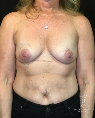 Breast Lift With Implants: Patient 8 - Before Image 1