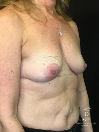 Breast Lift With Implants: Patient 8 - Before Image 2