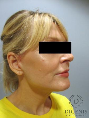 Facelift: Patient 5 - After Image 2