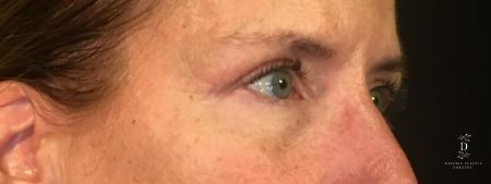 Eyelid Surgery: Patient 1 - After Image 2