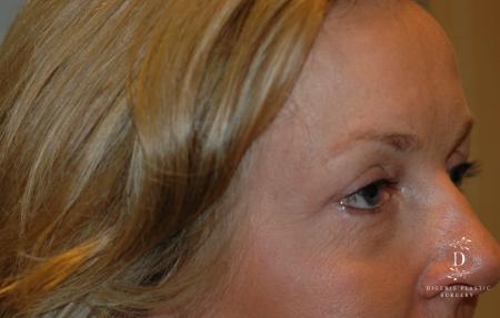 Eyelid Surgery: Patient 8 - After Image 2