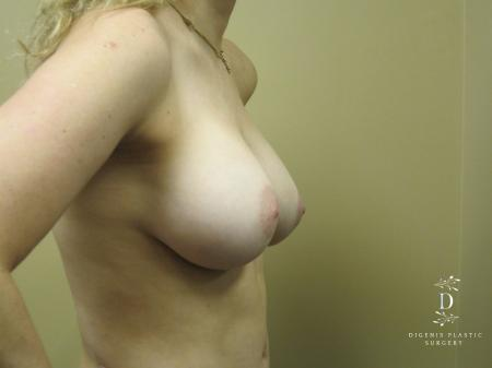 Breast Augmentation: Patient 13 - After Image 3