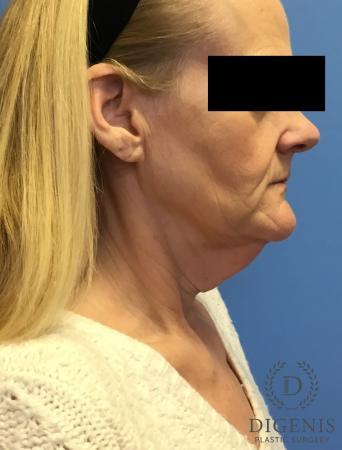 Facelift: Patient 3 - Before Image 3