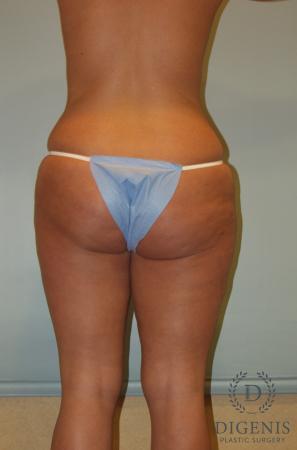 Liposuction: Patient 5 - Before Image 2