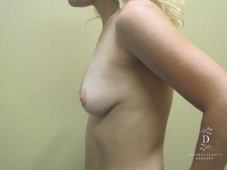 Breast Augmentation: Patient 13 - Before and After Image 5