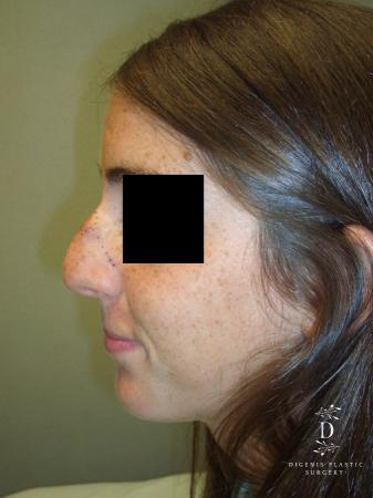 Rhinoplasty: Patient 6 - Before and After Image 4