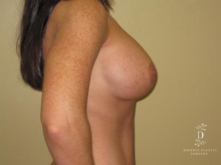 Breast Implant Exchange: Patient 1 - After Image 2