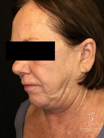 Facelift: Patient 13 - Before Image 4