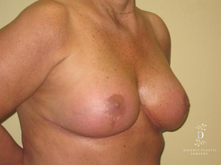 Breast Lift With Implants: Patient 7 - After Image 2
