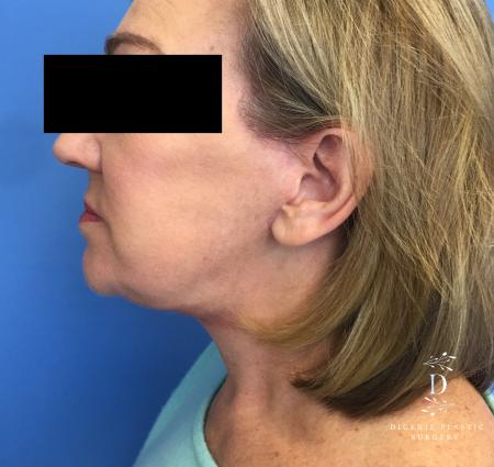 Facelift: Patient 2 - After Image 3