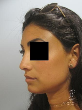 Rhinoplasty: Patient 7 - After Image 4