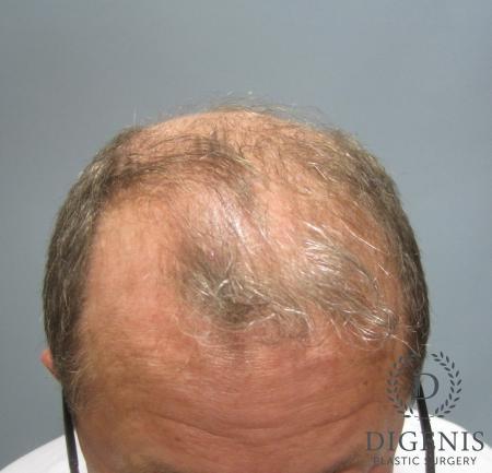 NeoGraft Hair Restoration: Patient 3 - Before Image 1