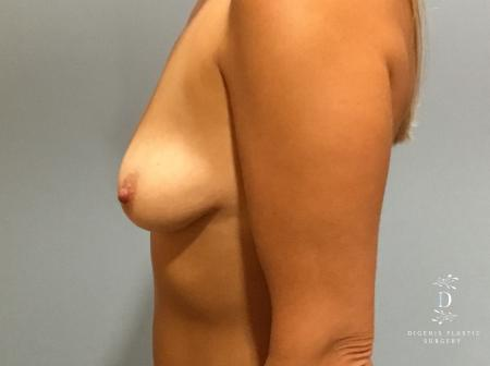 Breast Lift With Implants: Patient 5 - Before and After Image 5