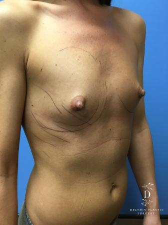 Breast Augmentation: Patient 9 - Before Image 2