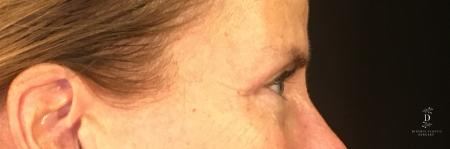 Eyelid Surgery: Patient 1 - After Image 3