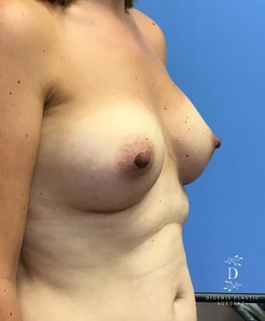 Breast Augmentation: Patient 11 - After Image 2