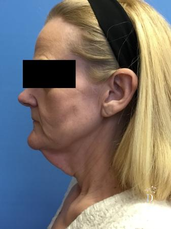 Facelift: Patient 3 - Before and After Image 5