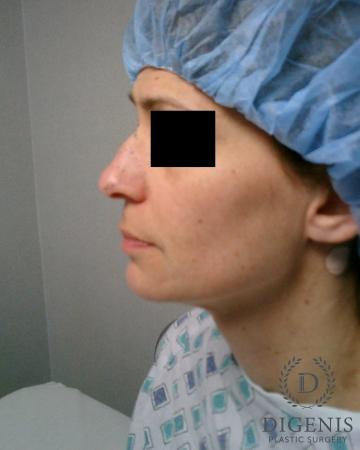 Rhinoplasty: Patient 5 - Before Image 5
