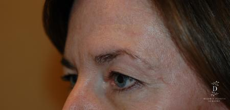 Eyelid Surgery: Patient 2 - Before and After Image 3