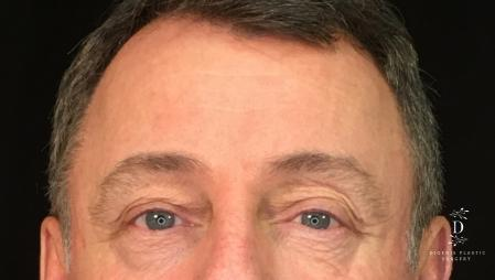 Eyelid Surgery: Patient 1 - Before Image 1