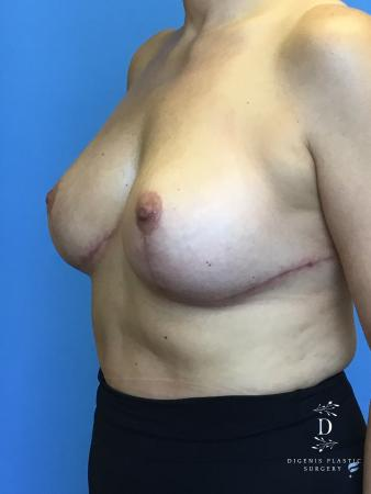 Breast Lift With Implants: Patient 2 - After Image 2