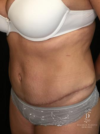Abdominoplasty: Patient 6 - After Image 2