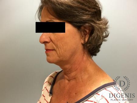 Facelift: Patient 15 - Before Image 4