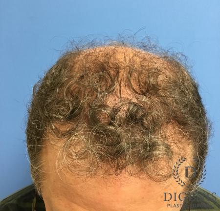 NeoGraft Hair Restoration: Patient 3 - After Image 1