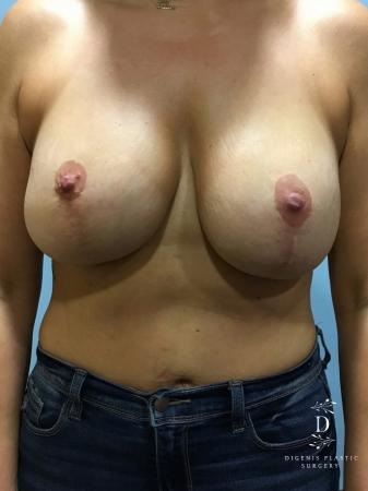 Breast Lift With Implants: Patient 2 - Before Image 1