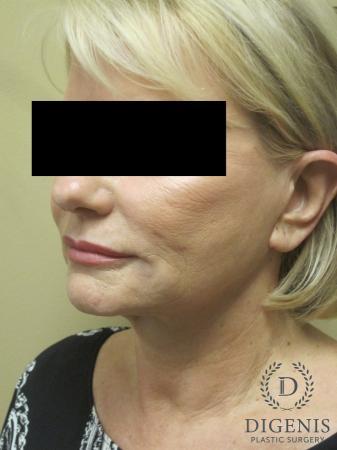 Facelift: Patient 14 - Before Image 4