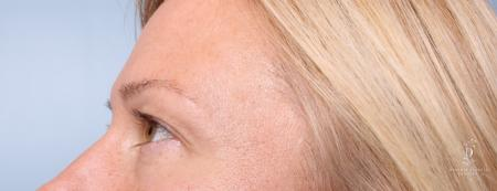 Eyelid Surgery: Patient 9 - Before and After Image 4