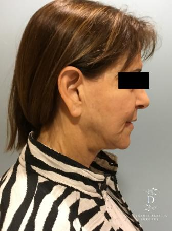 Facelift: Patient 6 - Before Image 3