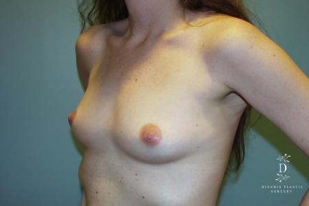 Breast Augmentation: Patient 6 - Before and After Image 2