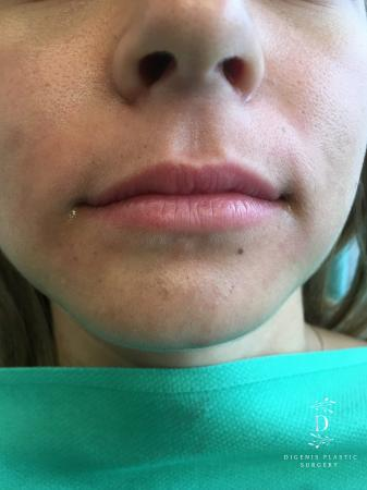 Injectables: Patient 2 - Before Image 1