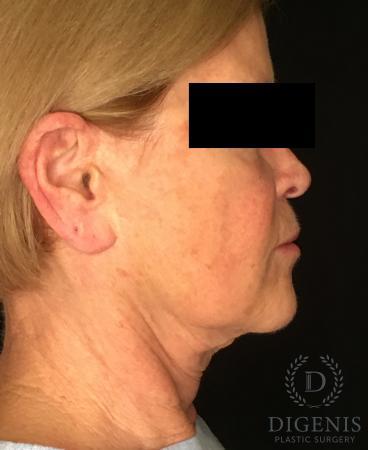 Facelift: Patient 1 - Before Image 3