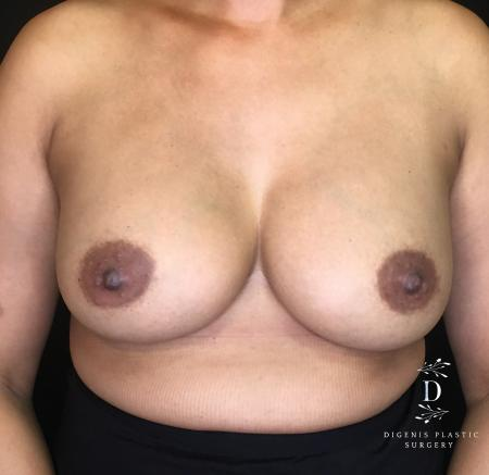 Breast Augmentation: Patient 14 - After Image 1