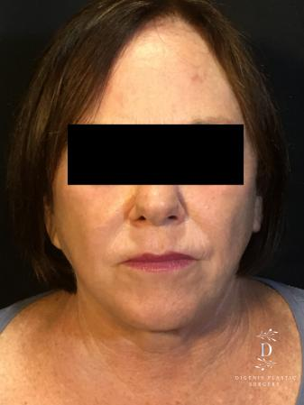 Facelift: Patient 13 - Before Image 1