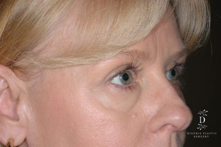 Eyelid Surgery: Patient 7 - Before Image 2