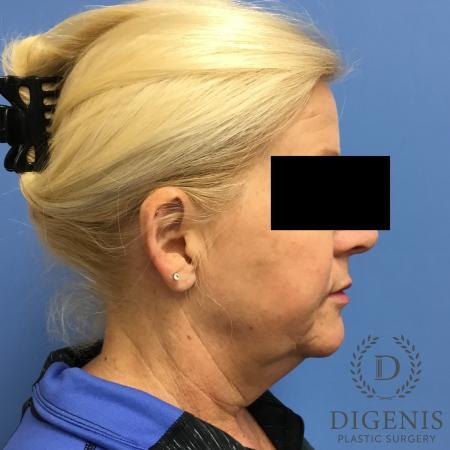 Facelift: Patient 12 - Before Image 3