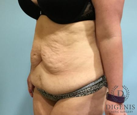 Abdominoplasty: Patient 5 - Before Image 4