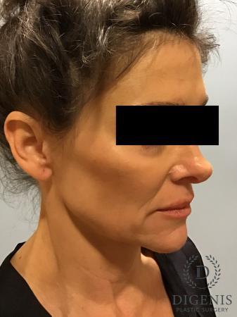 Facelift: Patient 9 - Before Image 4