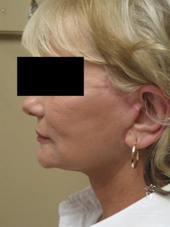 Facelift: Patient 14 - After Image 5