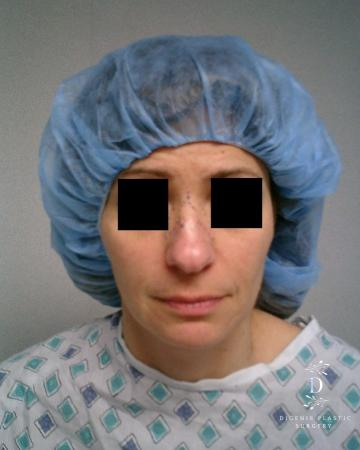 Rhinoplasty: Patient 5 - Before Image
