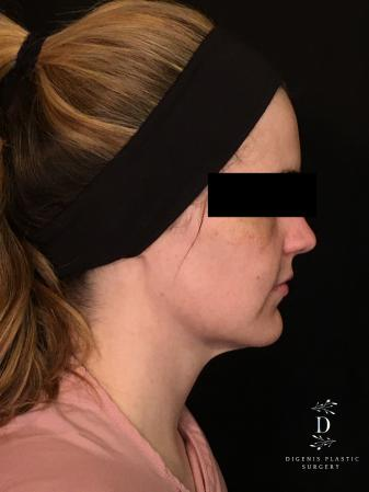 Digenis Refresh Lift: Patient 2 - Before and After Image 5