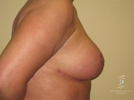 Breast Lift With Implants: Patient 7 - After Image 3