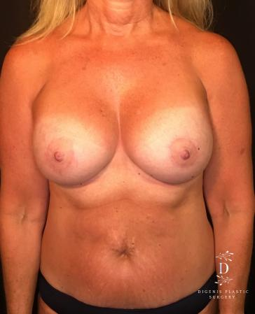 Breast Lift With Implants: Patient 8 - After Image 1